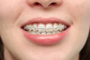 you gotta love braces :)